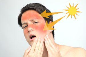 脱毛中の日焼け