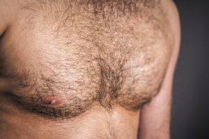 胸毛の脱毛