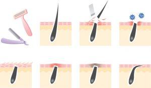 脱毛による肌トラブル